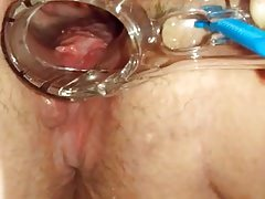 BBW opened up with speculum